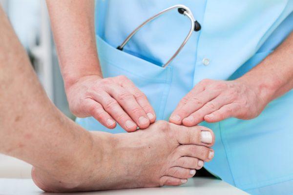 Fort Myers Podiatrist Bunion Treatment