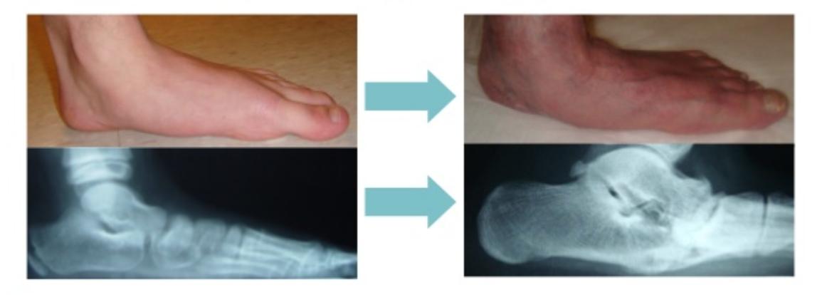 Misaligned feet
