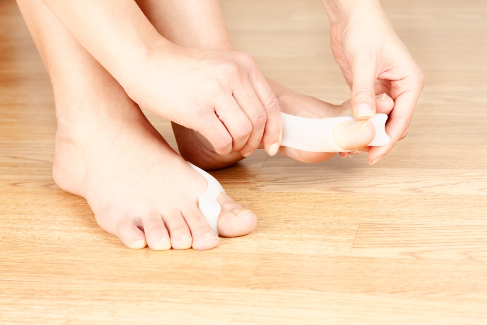 Bunion splint treatment