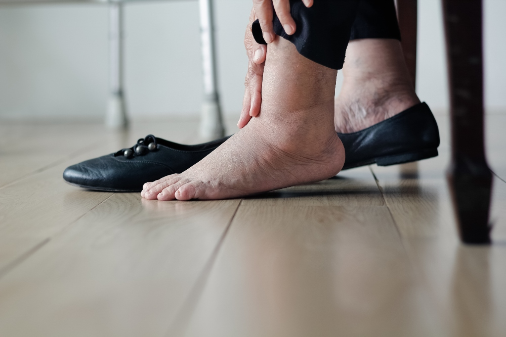 Obesity foot problems