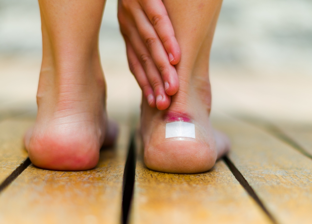 How to Treat Blister on Foot
