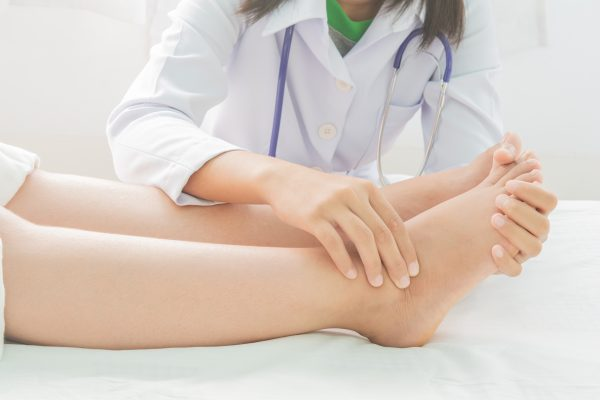 Hammertoes Symptoms, Causes & Treatments