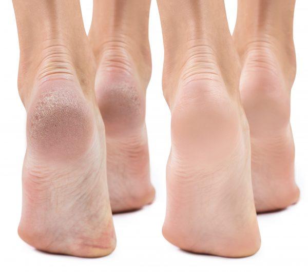 Dry Feet & Cracked Heels: Causes & Treatment