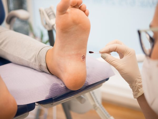 How to Safely Remove a Foot Wart at Home