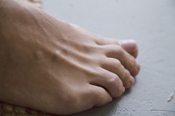 Early Signs of Arthritis in the Feet